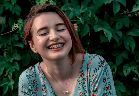 Ortodoncia: cuidados e higiene